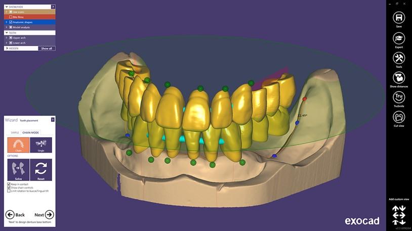Full Dental