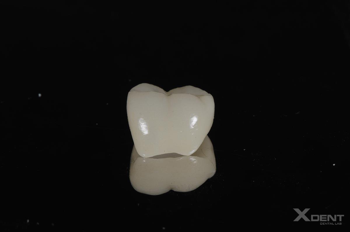 Thư viện - Răng hàm Zirconia