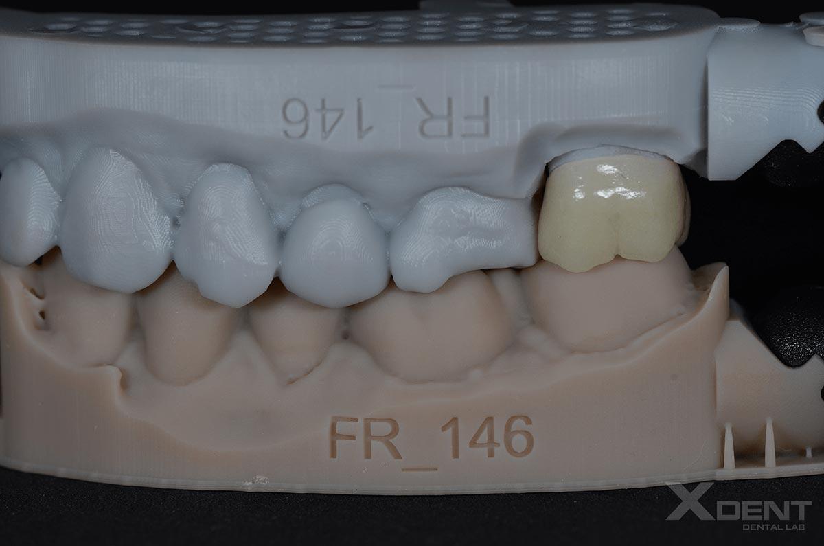 Thư viện- Răng hàm Emax