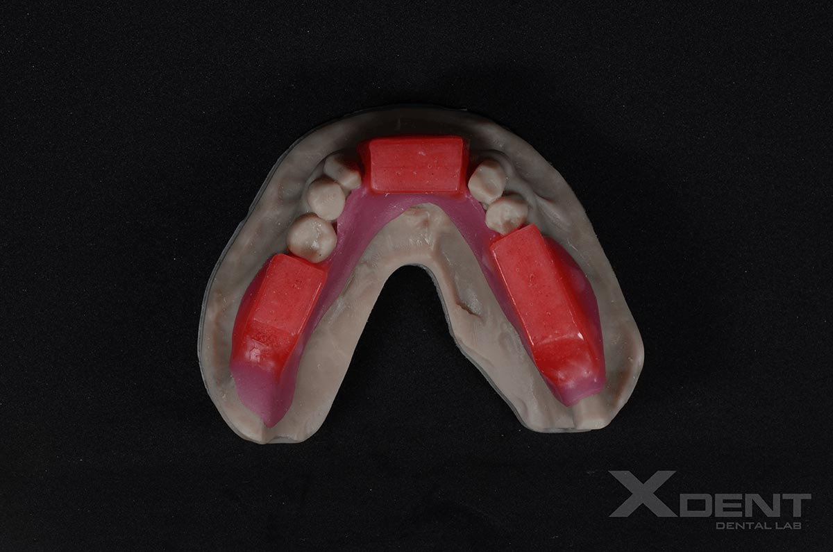 Xdent-dental-outsourcing-Wax Rim