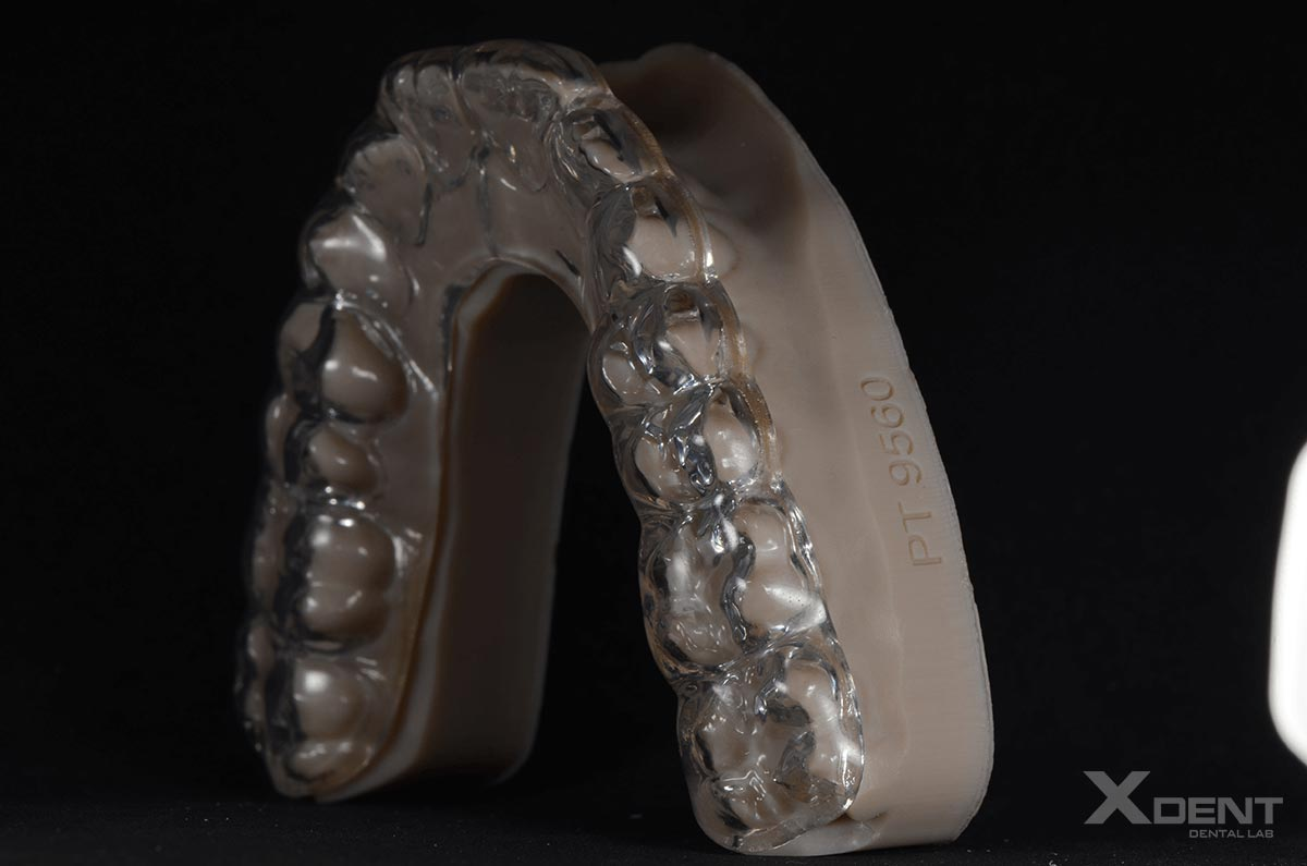 Xdent-dental-outsourcing-Night Guard