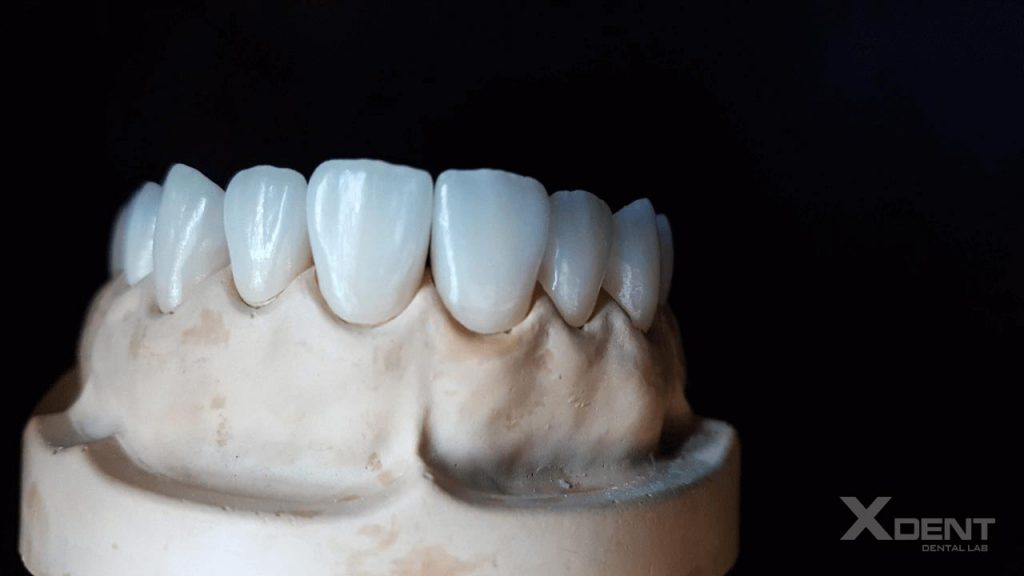 Xdent-dental-outsourcing-Emax