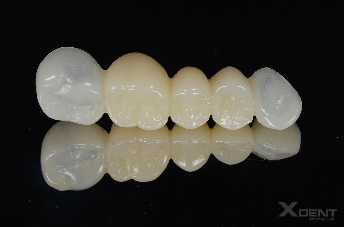 Răng tạm thời PMMA