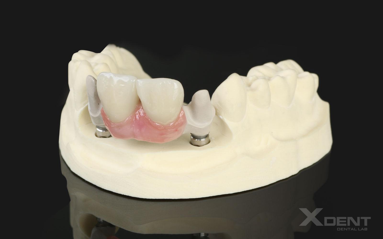 PEKK Implant Structure