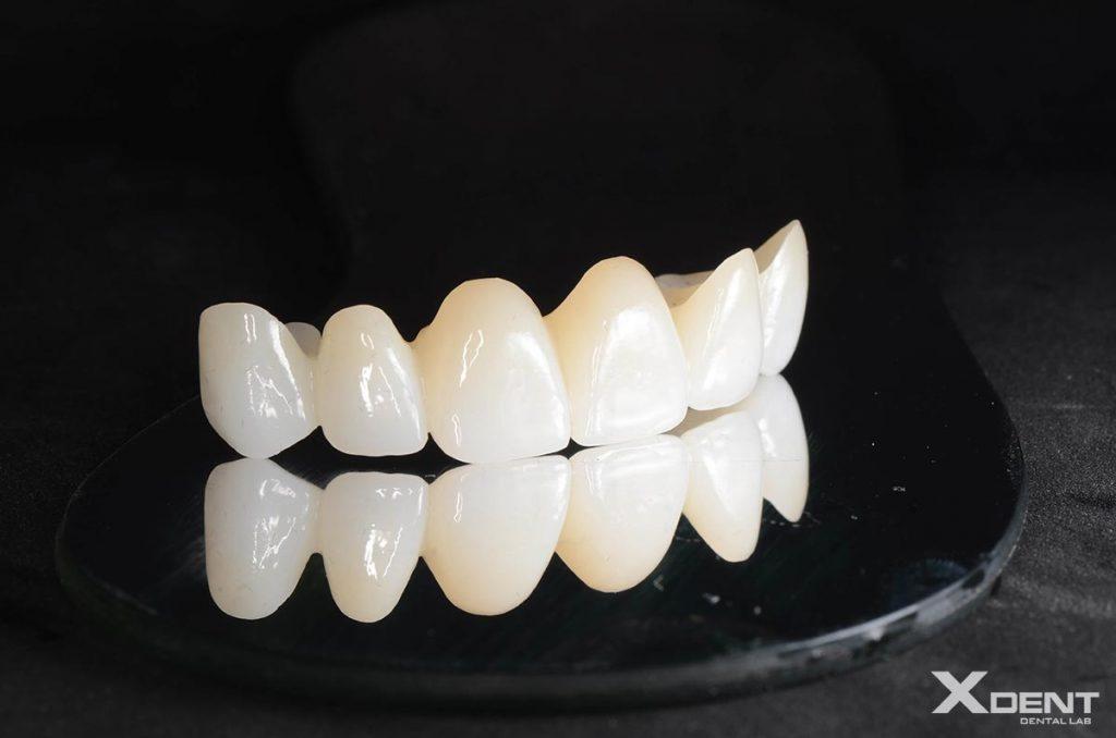 Xdent-dental-outsourcing- Zirconia Bridge