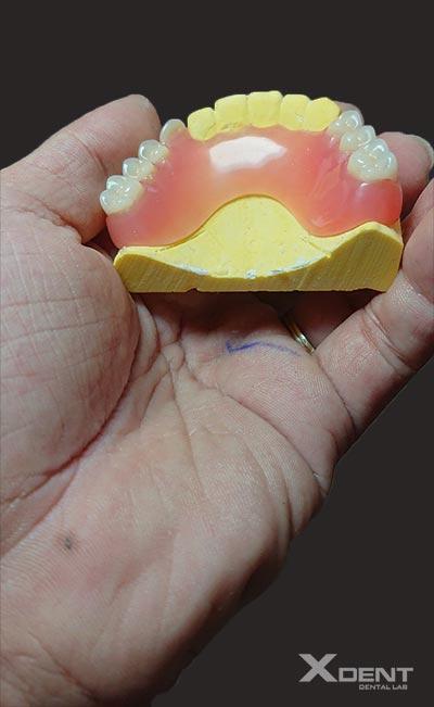 Acrylic partial denture