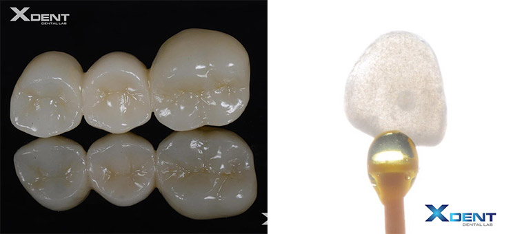 Emax Crown and Zirconia Crown