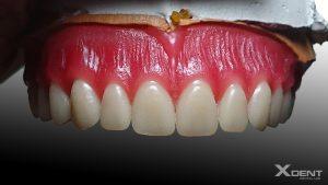 Răng giả tháo lắp toàn phần