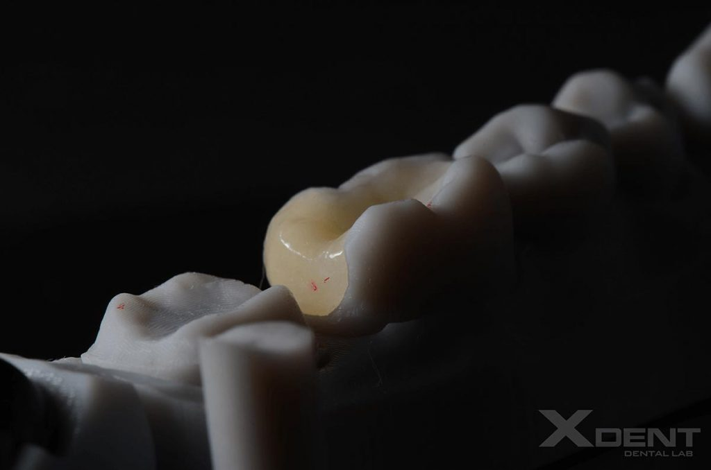xdent-dental- outsourcing-onlay