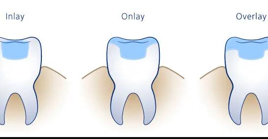 Răng Inlay-Onlay-Overlay